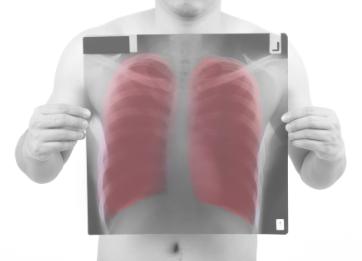 Abordaje integral de la enfermedad pulmonar obstructiva crónica - EPOC