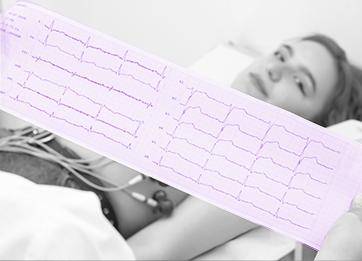 Electrocardiograma, imprescindible en Atención Primaria